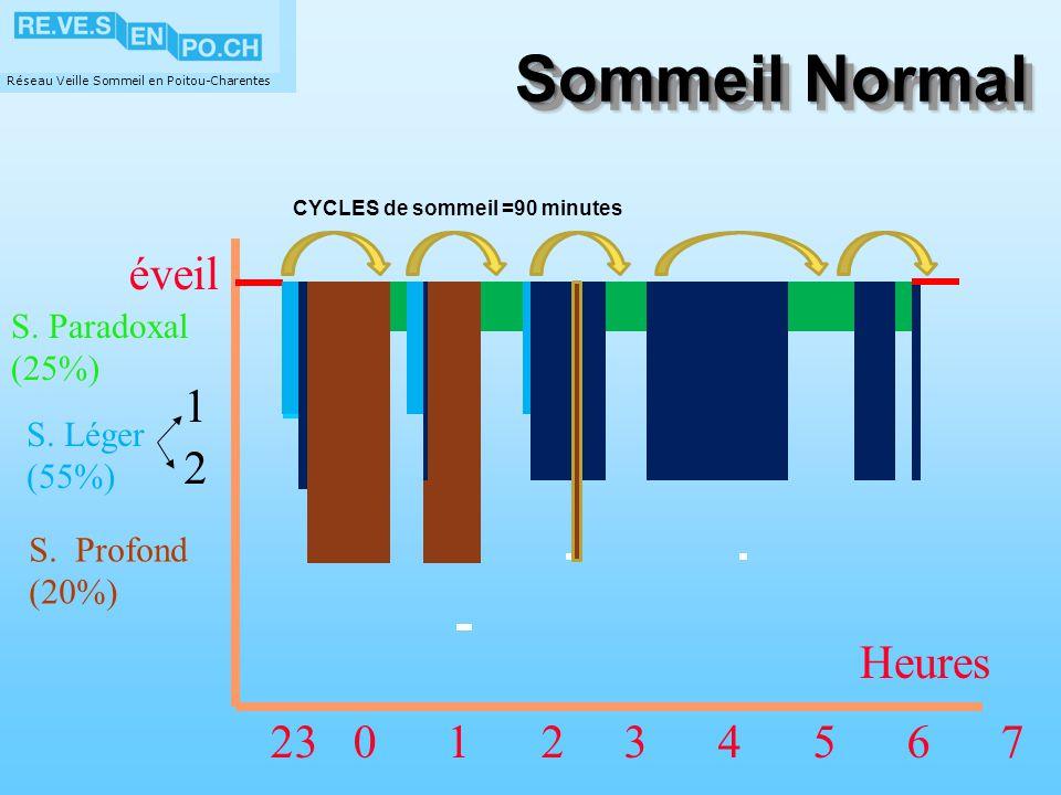 Réseau Veille Sommeil en Poitou-Charentes Sommeil Normal 2 S. Paradoxal (25%) 1 éveil 23 0 1 2 3 4 5 6 7 S. Profond (20%) S. Léger (55%) Heures CYCLES