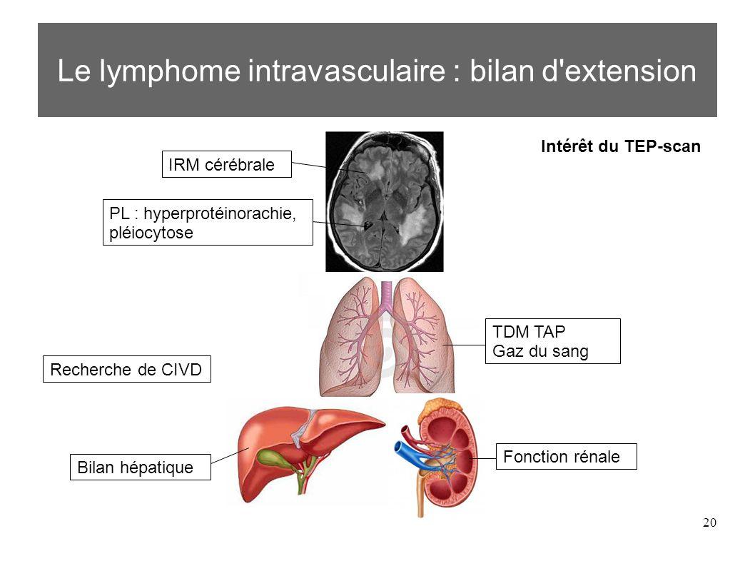 20 Le lymphome intravasculaire : bilan d extension IRM cérébrale PL : hyperprotéinorachie, pléiocytose TDM TAP Gaz du sang Bilan hépatique Fonction rénale Intérêt du TEP-scan Recherche de CIVD