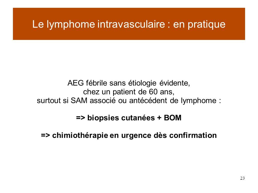 23 AEG fébrile sans étiologie évidente, chez un patient de 60 ans, surtout si SAM associé ou antécédent de lymphome : => biopsies cutanées + BOM => chimiothérapie en urgence dès confirmation Le lymphome intravasculaire : en pratique