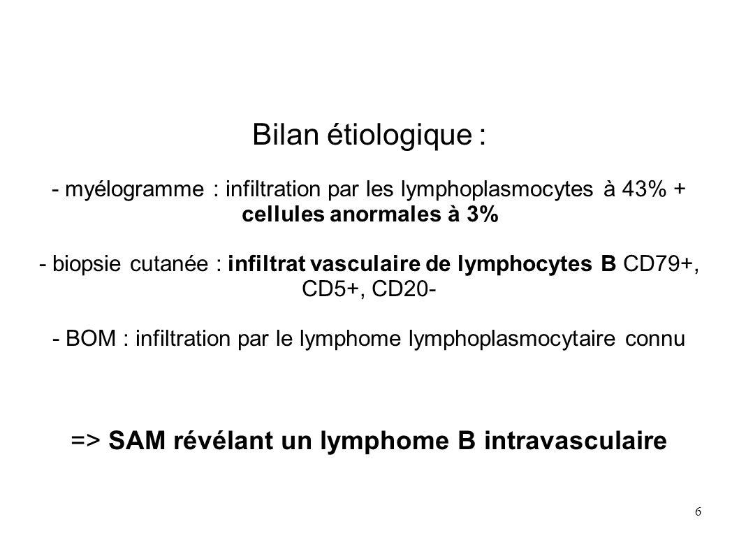 6 Bilan étiologique : - myélogramme : infiltration par les lymphoplasmocytes à 43% + cellules anormales à 3% - biopsie cutanée : infiltrat vasculaire de lymphocytes B CD79+, CD5+, CD20- - BOM : infiltration par le lymphome lymphoplasmocytaire connu => SAM révélant un lymphome B intravasculaire