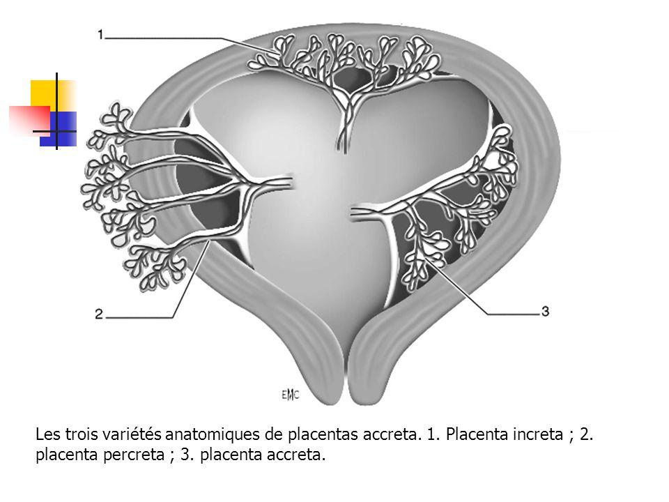 Les trois variétés anatomiques de placentas accreta. 1. Placenta increta ; 2. placenta percreta ; 3. placenta accreta.