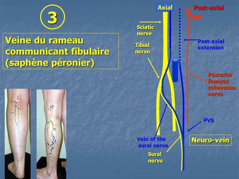 Suralnerve Tibialnerve Sciaticnerve Posteriorfemoralcutaneousnerve Vein of the sural nerve PVS Post-axial extension Post-axialAxial Neuro-vein Veine du rameau communicant fibulaire (saphène péronier) 3