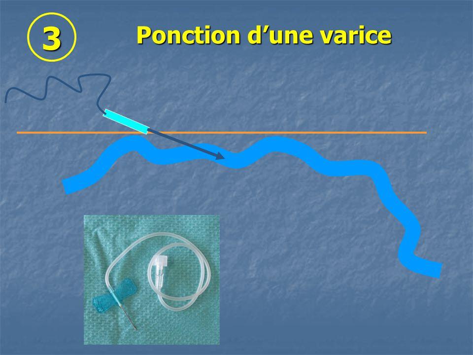 3 Ponction dune varice
