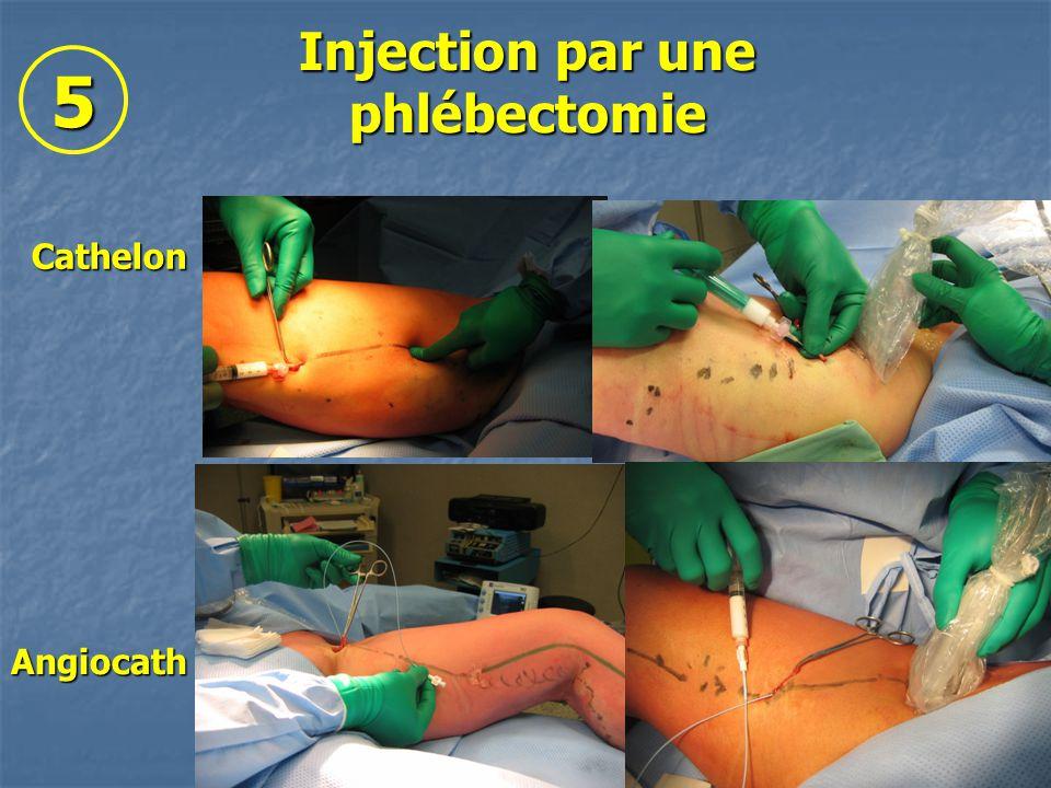 Injection par une phlébectomie Angiocath Cathelon 5