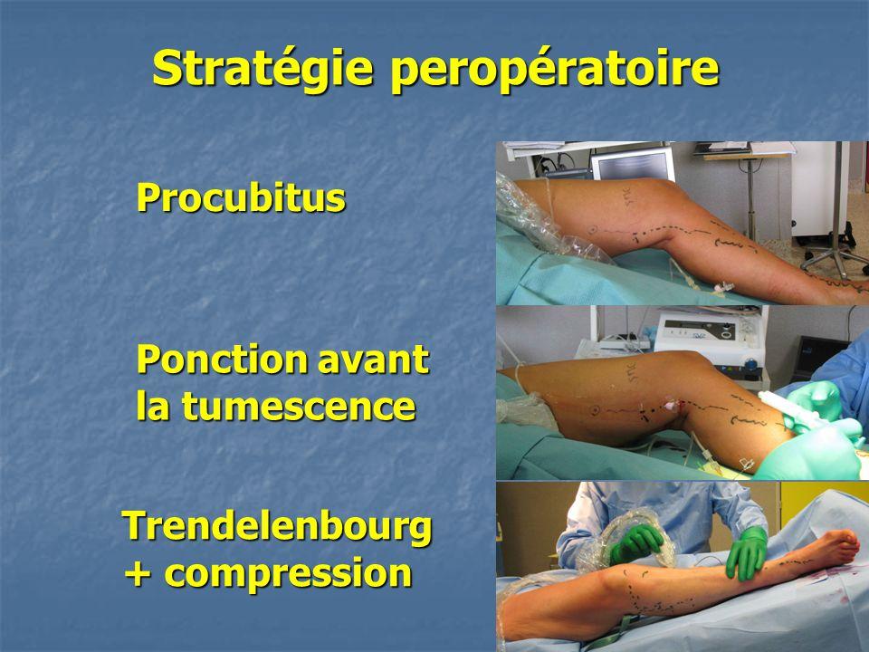Stratégie peropératoire Procubitus Ponction avant la tumescence Trendelenbourg + compression