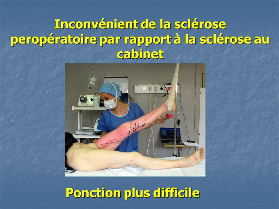 Inconvénient de la sclérose peropératoire par rapport à la sclérose au cabinet Ponction plus difficile