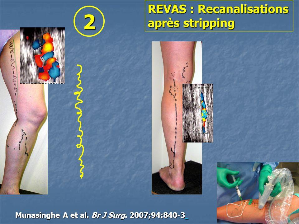REVAS : Recanalisations après stripping Munasinghe A et al. Br J Surg. 2007;94:840-3 2