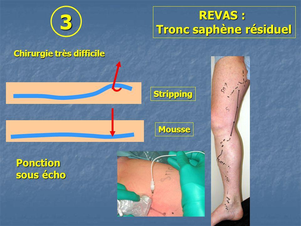 Chirurgie très difficile REVAS : Tronc saphène résiduel Stripping Mousse Ponction sous écho 3