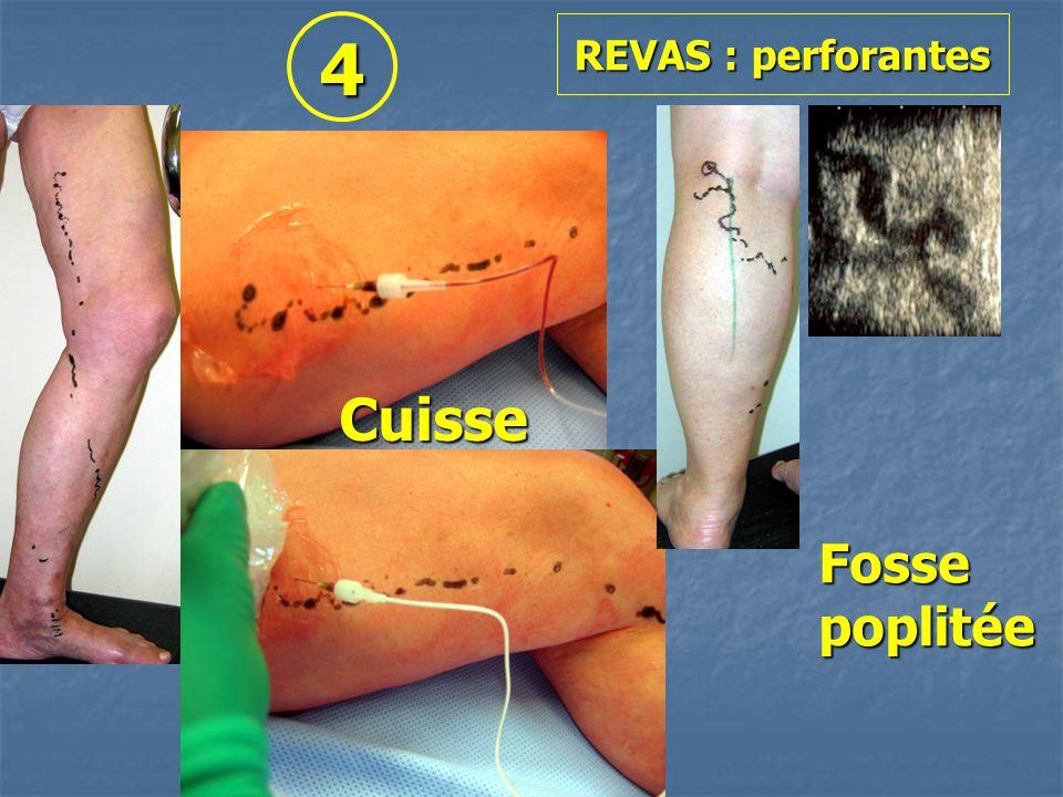 REVAS : perforantes Cuisse Fossepoplitée 4