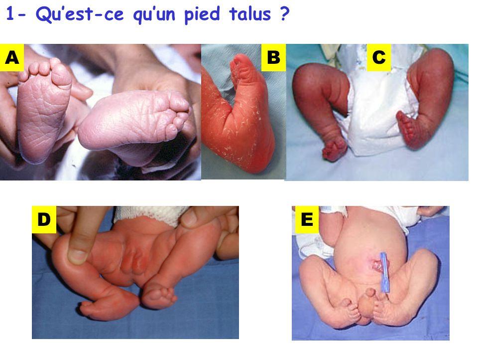 1- Quest-ce quun pied talus ? ABC DE