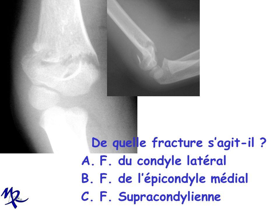 De quelle fracture sagit-il ? A.F. du condyle latéral B.F. de lépicondyle médial C.F. Supracondylienne