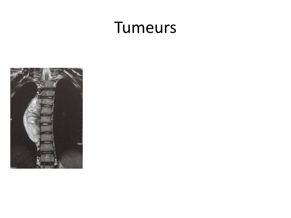 Tumeurs