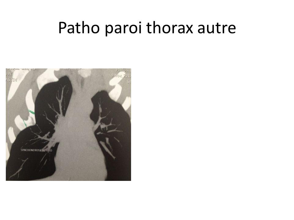 Patho paroi thorax autre