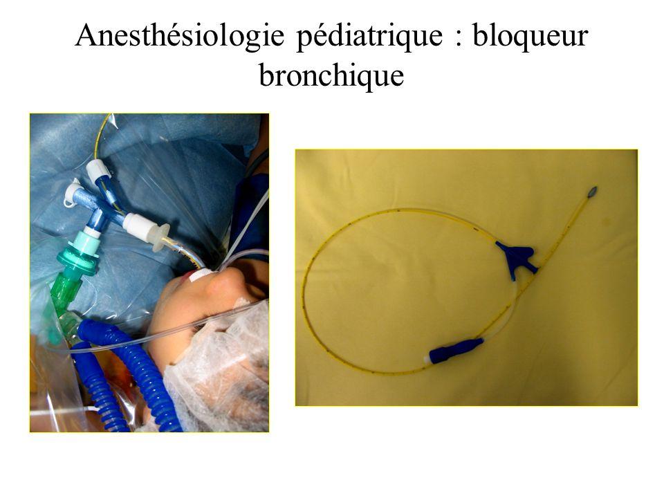 Anesthésiologie pédiatrique : bloqueur bronchique Bloqueur bronchique et vidéo-thoracoscopie