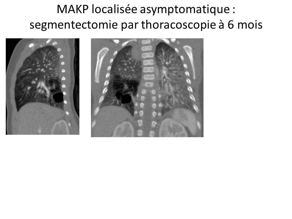 Forme hybride prénatale asymptomatique : lobectomie inférieure G par thoracoscopie à 9 mois