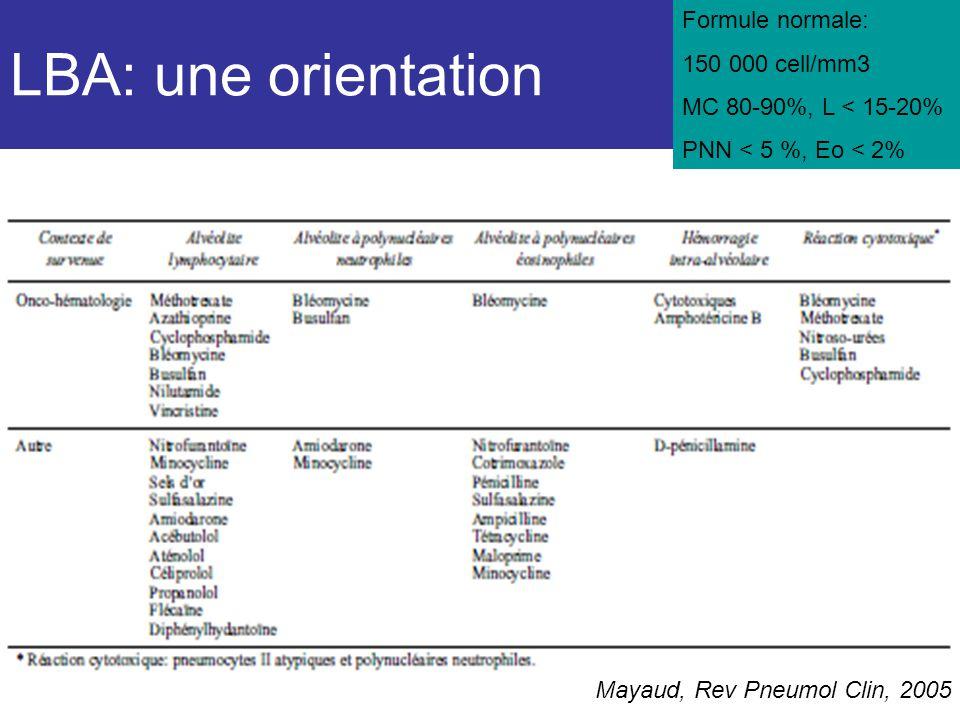 LBA: une orientation Mayaud, Rev Pneumol Clin, 2005 Formule normale: 150 000 cell/mm3 MC 80-90%, L < 15-20% PNN < 5 %, Eo < 2%