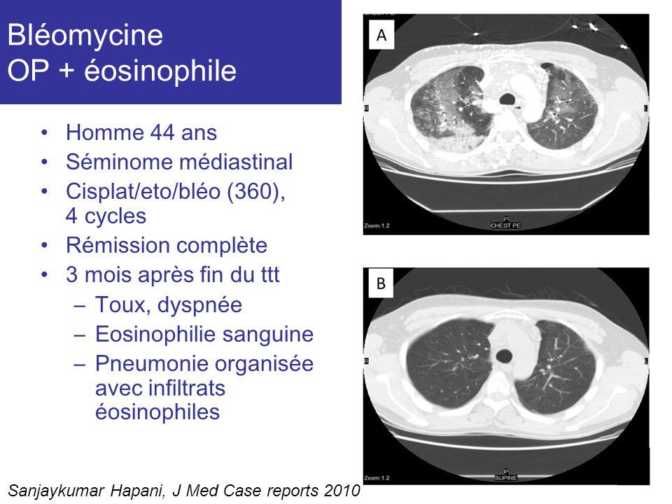 Bléomycine OP + éosinophile Homme 44 ans Séminome médiastinal Cisplat/eto/bléo (360), 4 cycles Rémission complète 3 mois après fin du ttt –Toux, dyspn