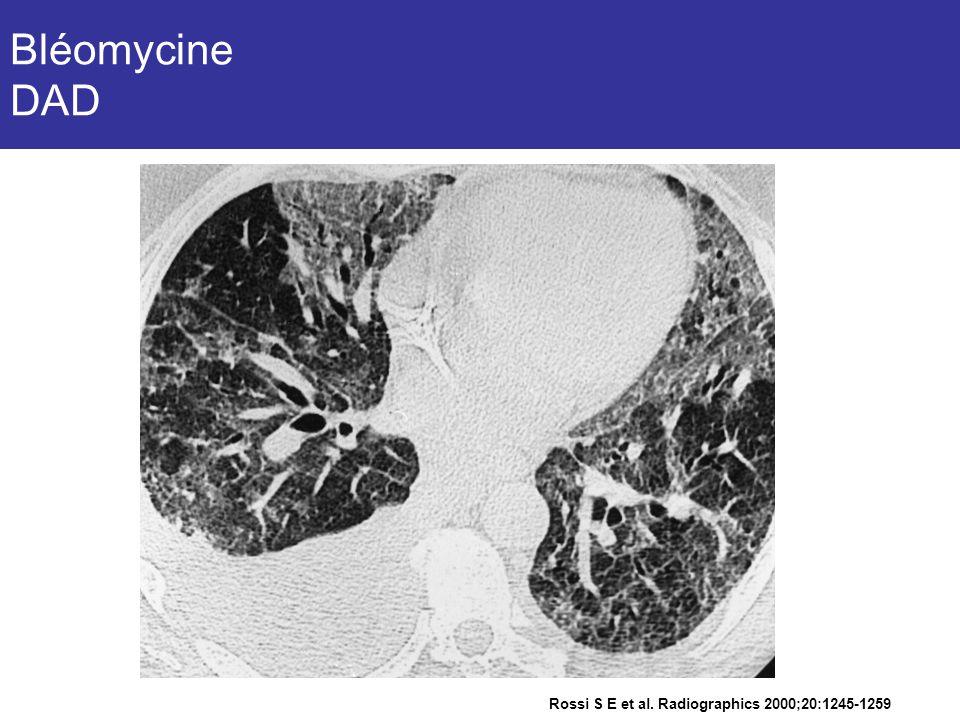 Rossi S E et al. Radiographics 2000;20:1245-1259 Bléomycine DAD