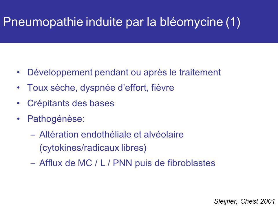 Pneumopathie induite par la bléomycine (1) Développement pendant ou après le traitement Toux sèche, dyspnée deffort, fièvre Crépitants des bases Pathogénèse: –Altération endothéliale et alvéolaire (cytokines/radicaux libres) –Afflux de MC / L / PNN puis de fibroblastes Sleijfler, Chest 2001