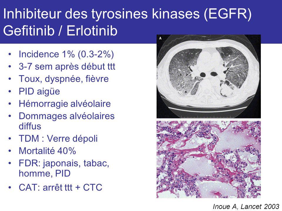 Inhibiteur des tyrosines kinases (EGFR) Gefitinib / Erlotinib Incidence 1% (0.3-2%) 3-7 sem après début ttt Toux, dyspnée, fièvre PID aigüe Hémorragie alvéolaire Dommages alvéolaires diffus TDM : Verre dépoli Mortalité 40% FDR: japonais, tabac, homme, PID CAT: arrêt ttt + CTC Inoue A, Lancet 2003