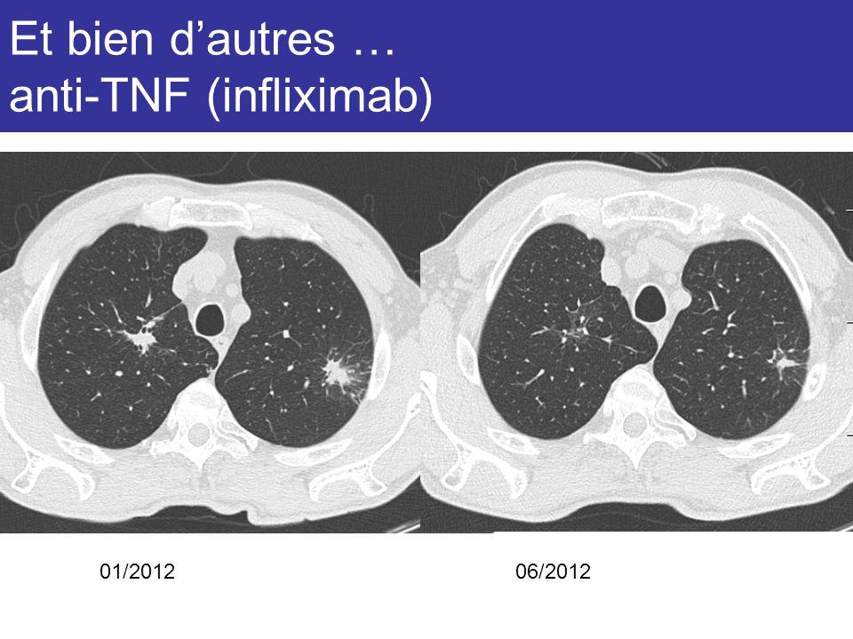 Et bien dautres … anti-TNF (infliximab) 01/201206/2012