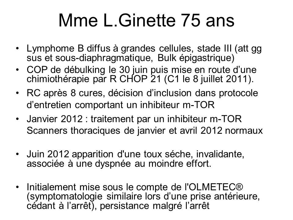 Mme L.Ginette 75 ans Lymphome B diffus à grandes cellules, stade III (att gg sus et sous-diaphragmatique, Bulk épigastrique) COP de débulking le 30 juin puis mise en route dune chimiothérapie par R CHOP 21 (C1 le 8 juillet 2011).