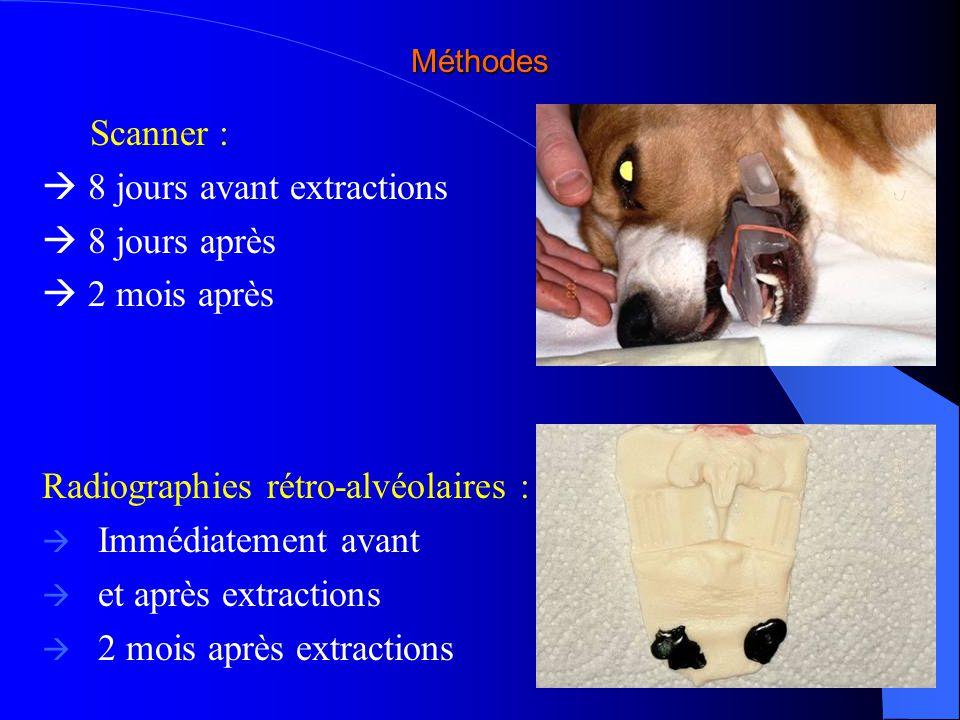 Méthodes Scanner : 8 jours avant extractions 8 jours après 2 mois après Radiographies rétro-alvéolaires : Immédiatement avant et après extractions 2 m