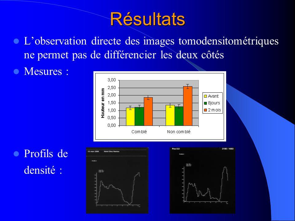 Résultats Lobservation directe des images tomodensitométriques ne permet pas de différencier les deux côtés Mesures : Profils de densité :
