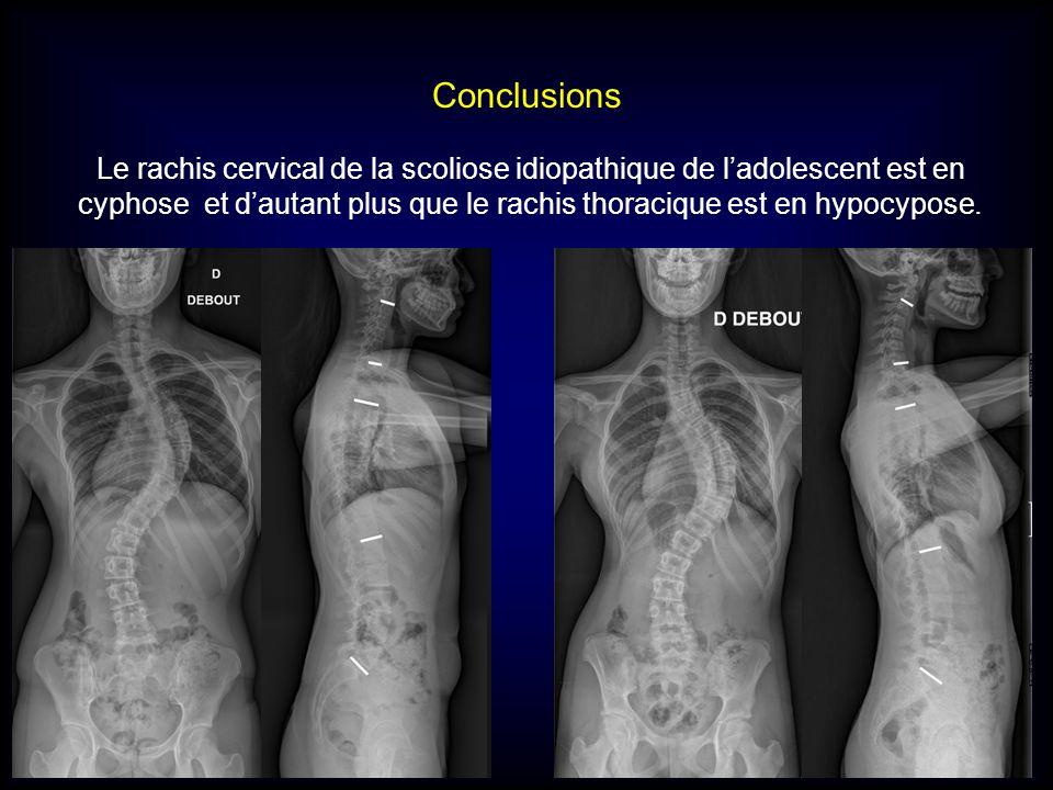 Conclusions Le rachis cervical de la scoliose idiopathique de ladolescent est en cyphose et dautant plus que le rachis thoracique est en hypocypose.
