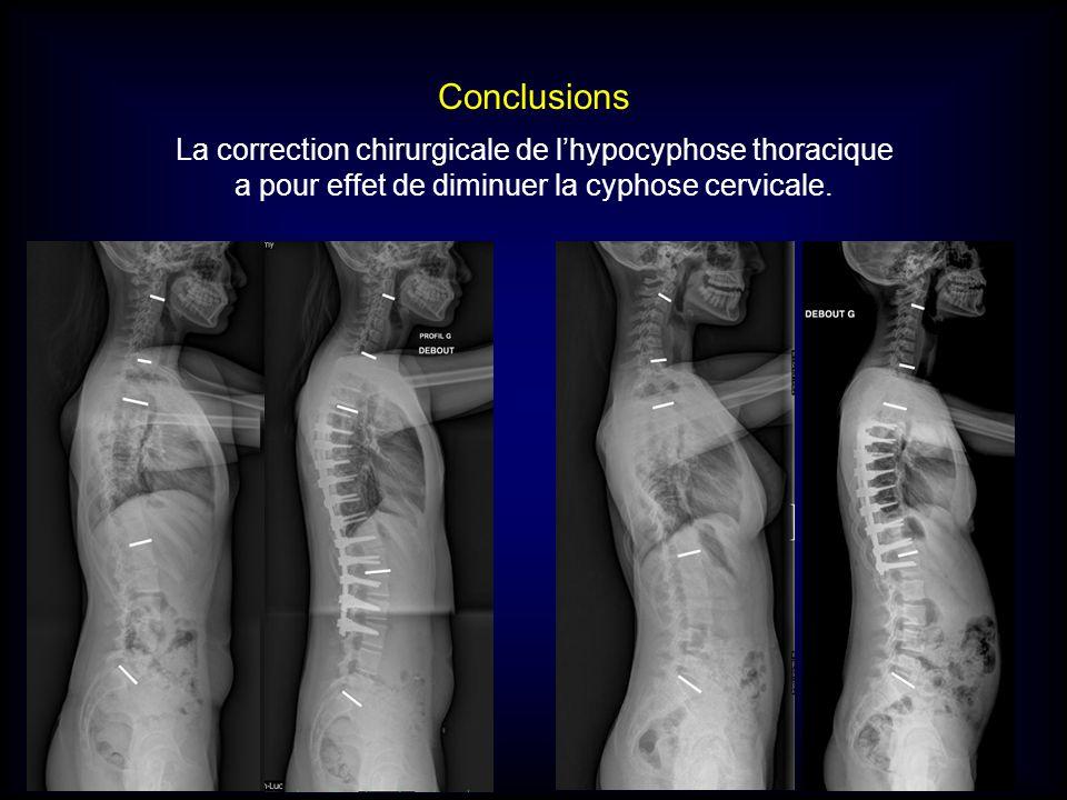 Conclusions La correction chirurgicale de lhypocyphose thoracique a pour effet de diminuer la cyphose cervicale.