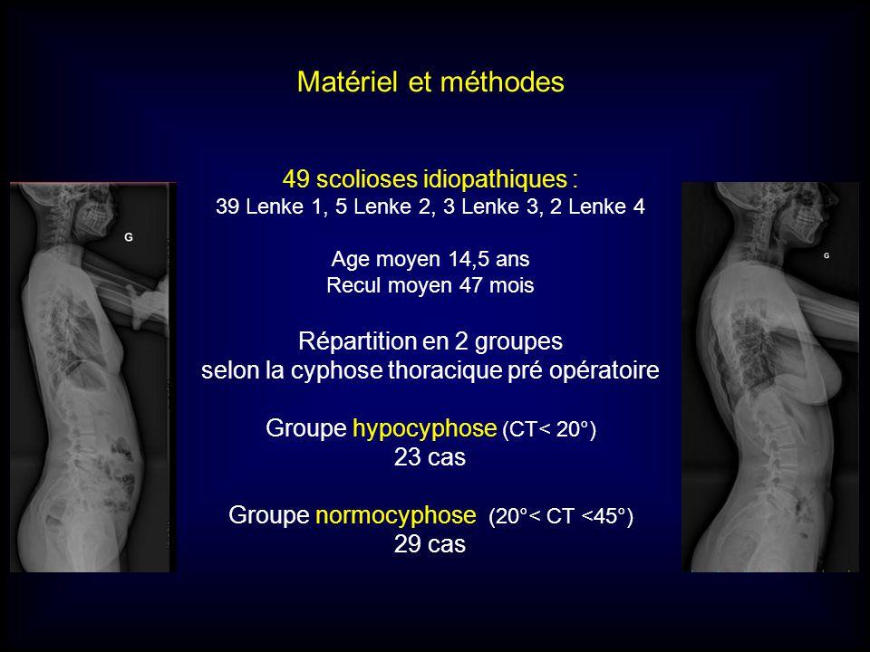 Matériel et méthodes 49 scolioses idiopathiques : 39 Lenke 1, 5 Lenke 2, 3 Lenke 3, 2 Lenke 4 Age moyen 14,5 ans Recul moyen 47 mois Répartition en 2 groupes selon la cyphose thoracique pré opératoire Groupe hypocyphose (CT< 20°) 23 cas Groupe normocyphose (20°< CT <45°) 29 cas