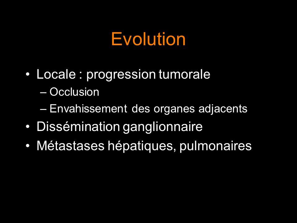 Evolution Locale : progression tumorale –Occlusion –Envahissement des organes adjacents Dissémination ganglionnaire Métastases hépatiques, pulmonaires