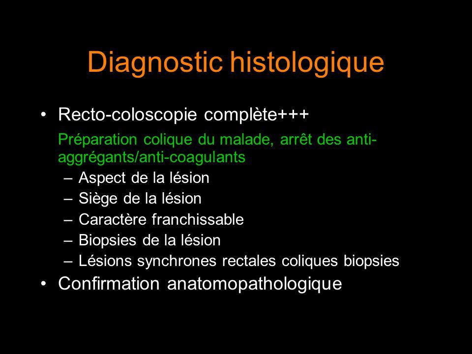 Diagnostic histologique Recto-coloscopie complète+++ Préparation colique du malade, arrêt des anti- aggrégants/anti-coagulants –Aspect de la lésion –S