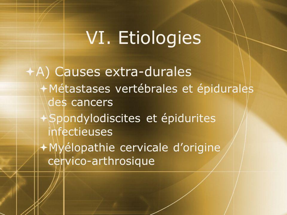 VI. Etiologies A) Causes extra-durales Métastases vertébrales et épidurales des cancers Spondylodiscites et épidurites infectieuses Myélopathie cervic