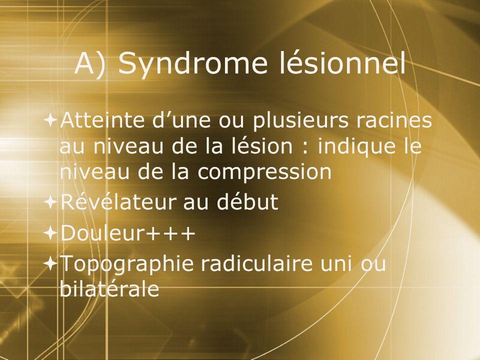 A) Syndrome lésionnel Atteinte dune ou plusieurs racines au niveau de la lésion : indique le niveau de la compression Révélateur au début Douleur+++ T