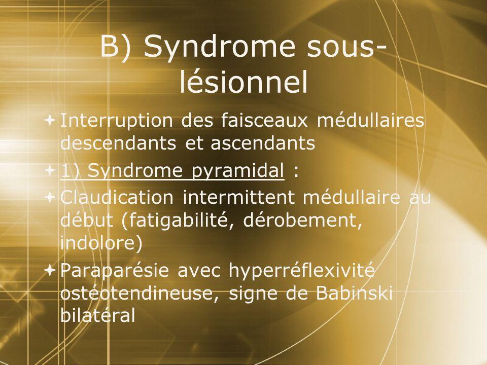 2) Troubles sensitifs: Hypoesthésie au contact, à la piqûre dont la limite supérieure, située au-dessous du syndrome lésionnel est généralement nette= niveau sensitif 2) Troubles sensitifs: Hypoesthésie au contact, à la piqûre dont la limite supérieure, située au-dessous du syndrome lésionnel est généralement nette= niveau sensitif