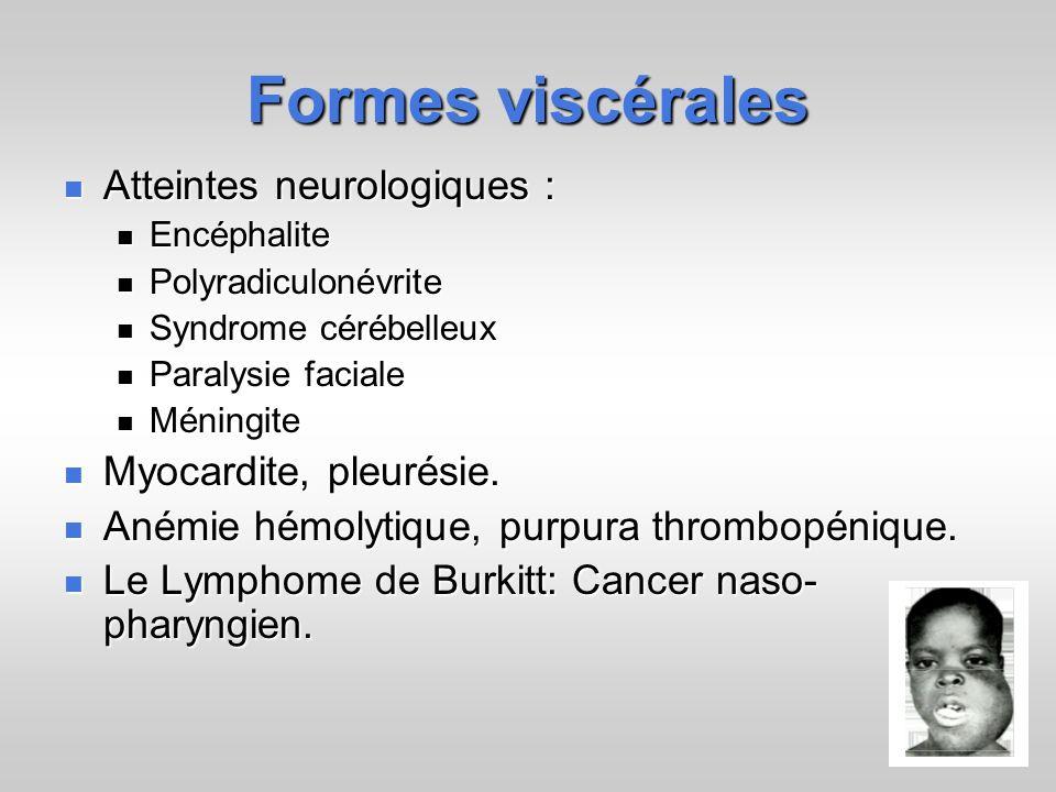 Formes viscérales Atteintes neurologiques : Atteintes neurologiques : Encéphalite Encéphalite Polyradiculonévrite Polyradiculonévrite Syndrome cérébel