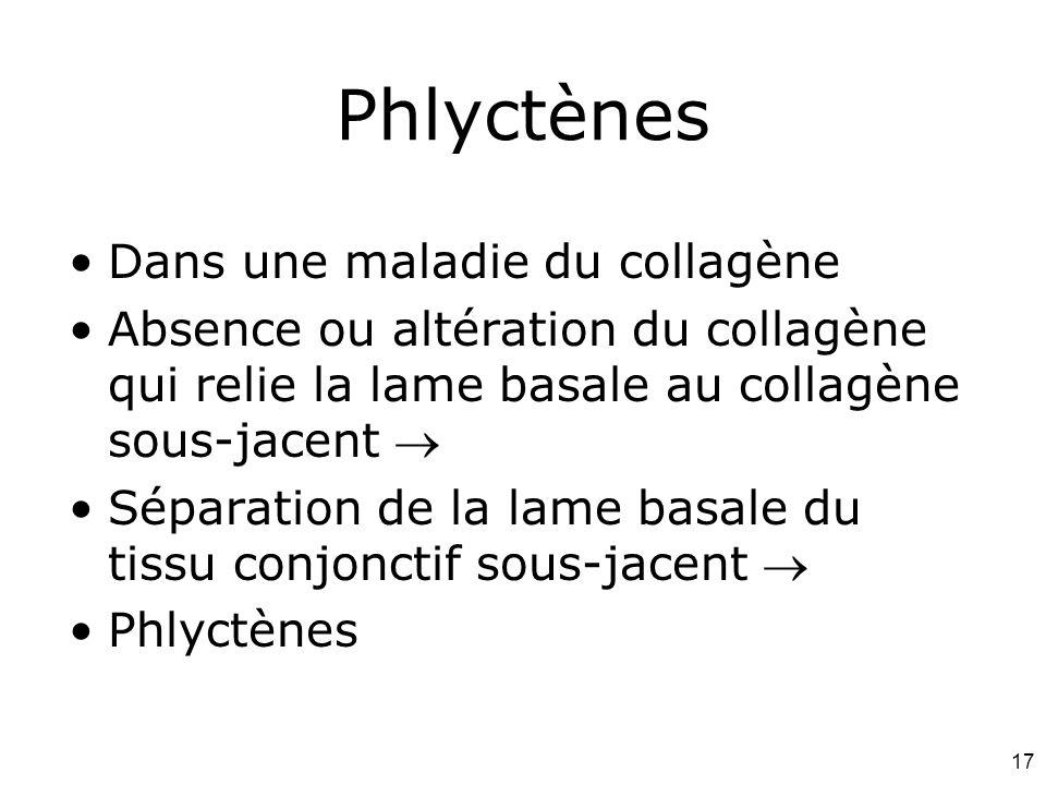 17 Phlyctènes Dans une maladie du collagène Absence ou altération du collagène qui relie la lame basale au collagène sous-jacent Séparation de la lame basale du tissu conjonctif sous-jacent Phlyctènes