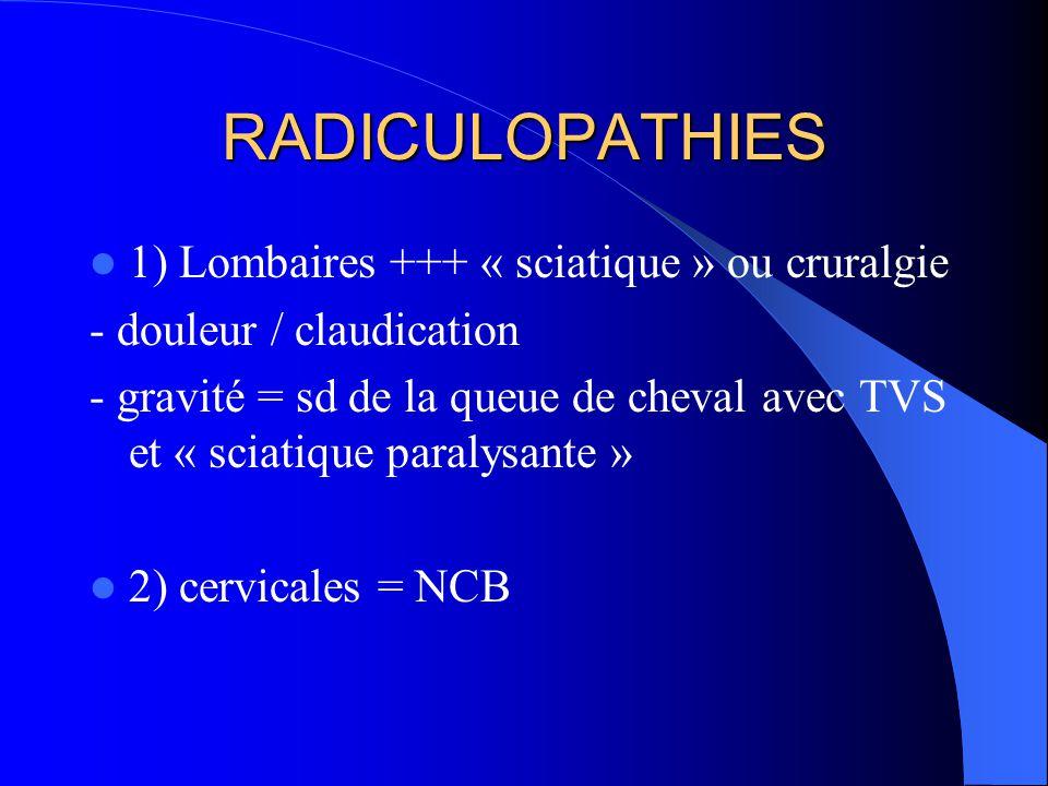 RADICULOPATHIES 1) Lombaires +++ « sciatique » ou cruralgie - douleur / claudication - gravité = sd de la queue de cheval avec TVS et « sciatique para