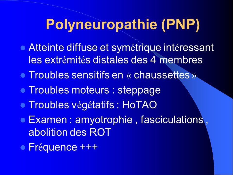 PNP : ETIOLOGIES Diabéte +++ Médicaments : chimiothérapies, cordarone… Alcoolo-carentielle +++ Dysglobulinémie Cancers, hémopathies Infectieux : lépre, VIH Amylose Héréditaires : CMT