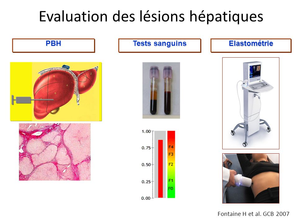 Evaluation des lésions hépatiques Elastométrie Tests sanguins PBH Fontaine H et al. GCB 2007