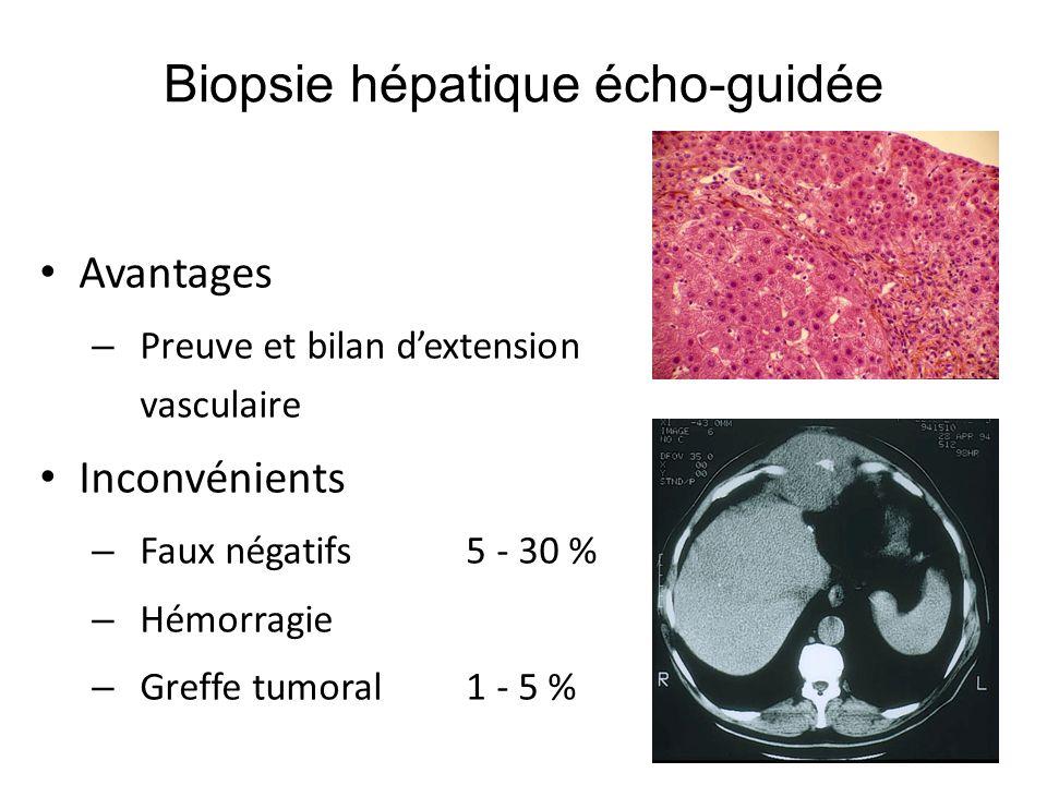 Biopsie dirigée Avantages – Preuve et bilan dextension vasculaire Inconvénients – Faux négatifs 5 - 30 % – Hémorragie – Greffe tumoral 1 - 5 % Biopsie hépatique écho-guidée