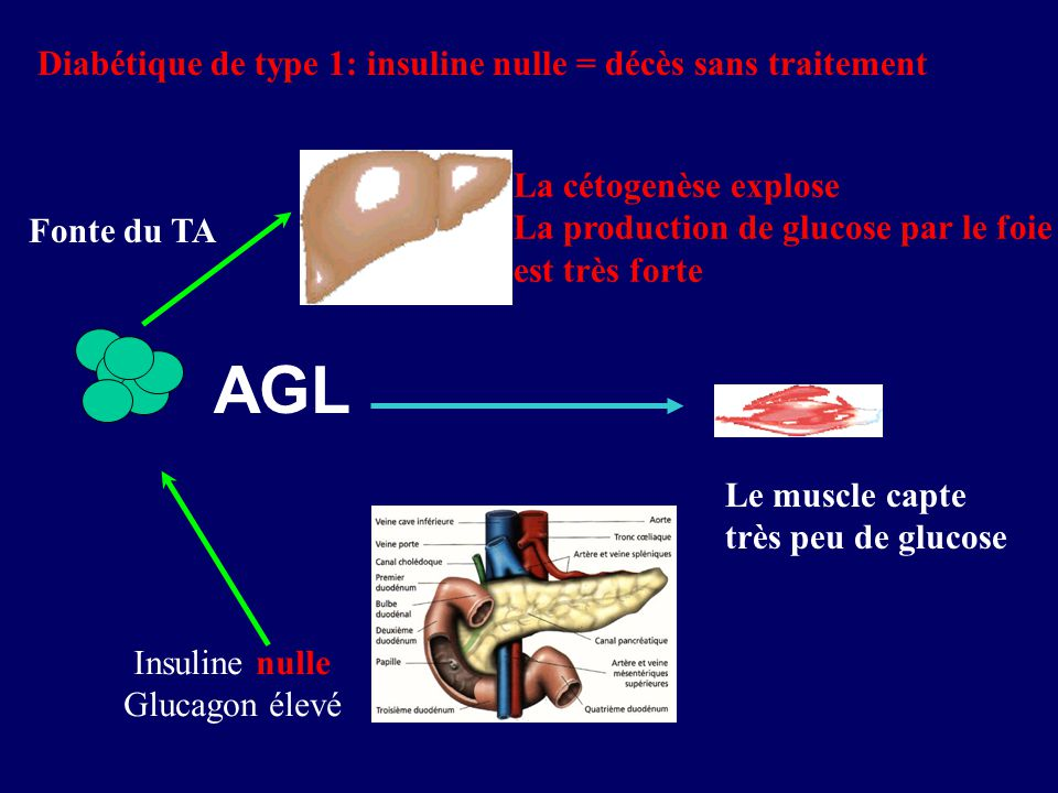 AGL Insuline nulle Glucagon élevé La cétogenèse explose La production de glucose par le foie est très forte Le muscle capte très peu de glucose Diabét