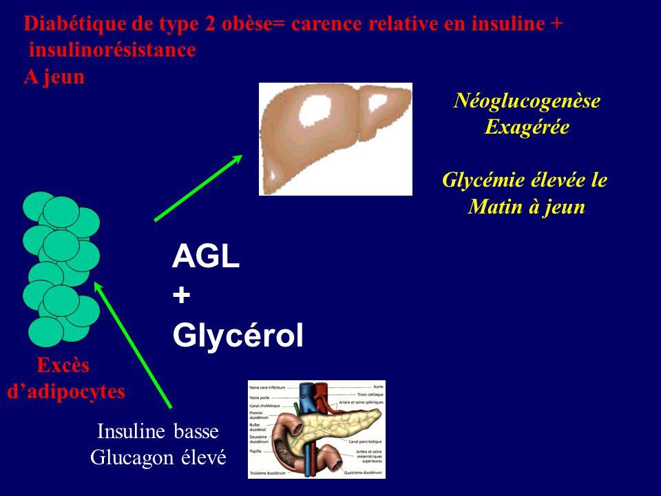 AGL + Glycérol Insuline basse Glucagon élevé Diabétique de type 2 obèse= carence relative en insuline + insulinorésistance A jeun Néoglucogenèse Exagé