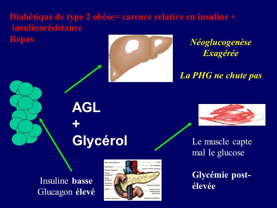 AGL + Glycérol Insuline basse Glucagon élevé Diabétique de type 2 obèse= carence relative en insuline + insulinorésistance Repas Néoglucogenèse Exagér