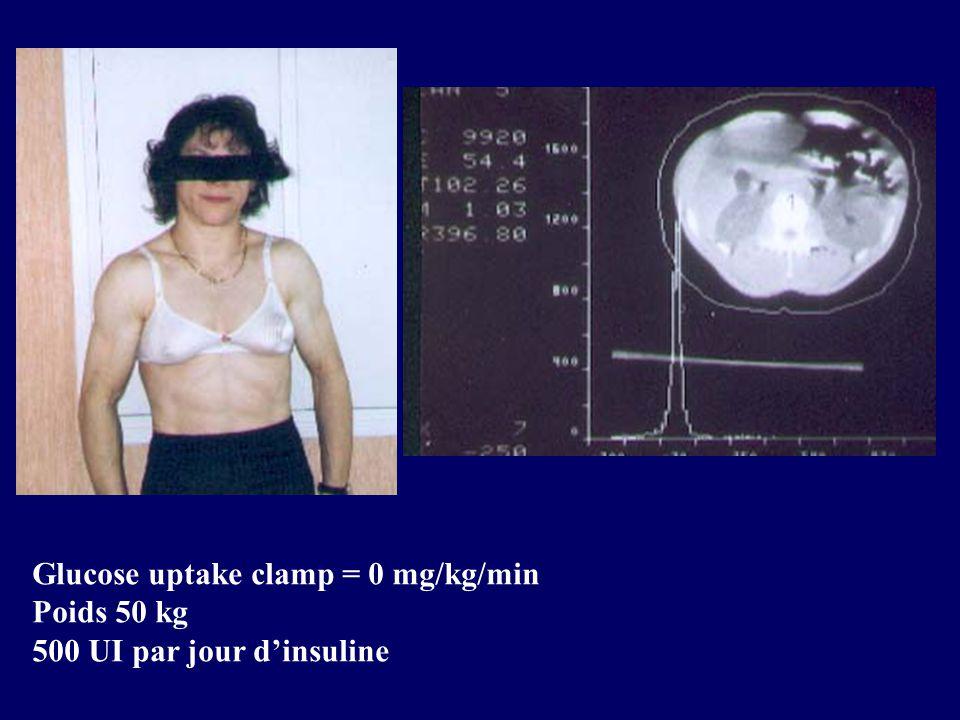 Glucose uptake clamp = 0 mg/kg/min Poids 50 kg 500 UI par jour dinsuline