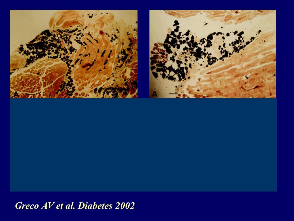 Greco AV et al. Diabetes 2002