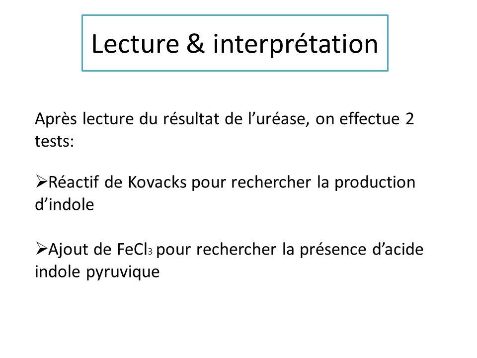 Lecture & interprétation Après lecture du résultat de luréase, on effectue 2 tests: Réactif de Kovacks pour rechercher la production dindole Ajout de