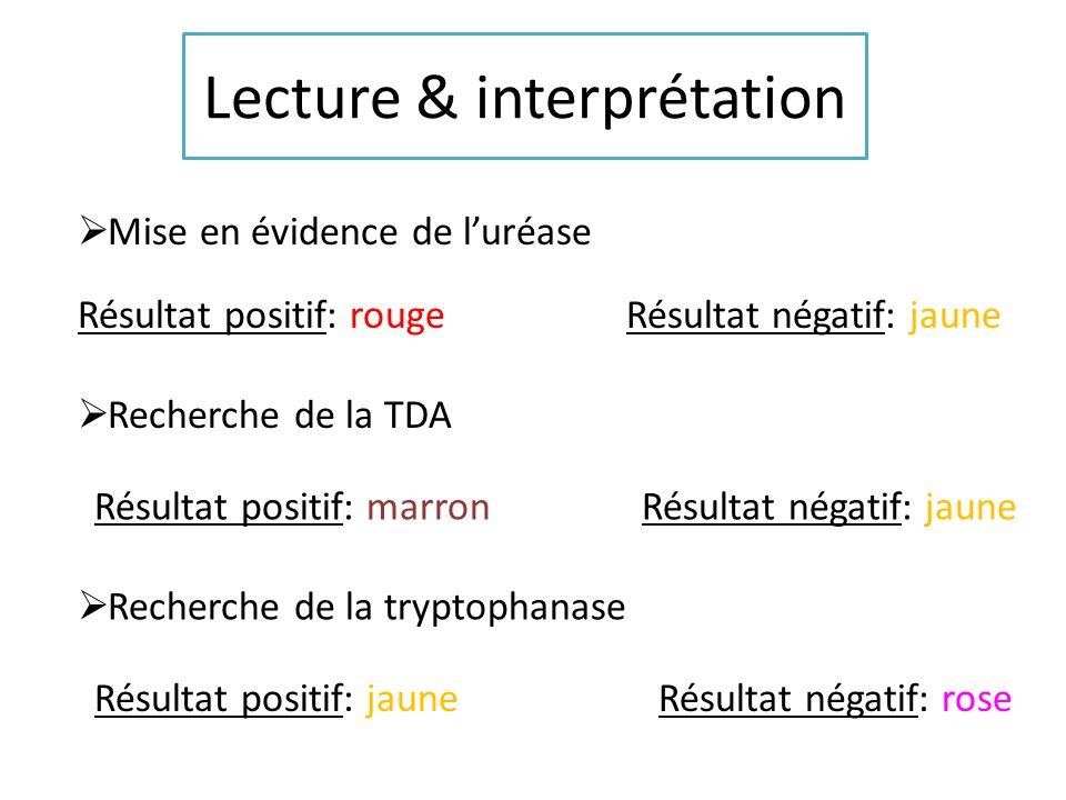 Lecture & interprétation Mise en évidence de luréase Résultat positif: rouge Résultat négatif: jaune Recherche de la TDA Résultat positif: marron Résu