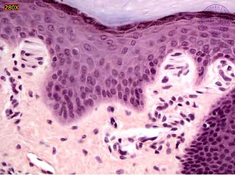 39 Couche des cellules granuleuses
